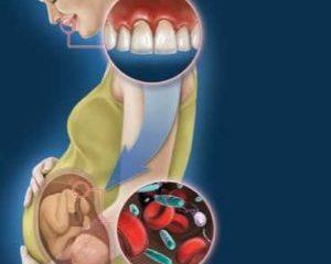 Роды в Америке / Зубная боль и основные стоматологические проблемы во время беременности.